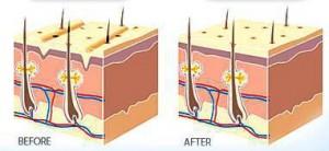How collagen restores the skin